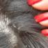 頭皮の乾燥・脂性状態の見分け方は?セルフチェック方法を紹介!